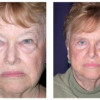 Before and After - Blepharoplasty 1 - Front View