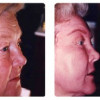 Before and After - Chemical Peel 1 - Side View