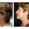 Before and After - Facial Rejuvenation 3 - Side View