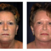 Before and After - Facial Rejuvenation 3 - Front View