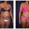 Lipo-Abdominoplasty 10 - Profile