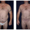 Liposuction 2 - Male - Front View