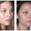 Before and After - Rhinoplasty 2 - Back View
