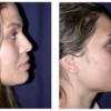 Before and After - Rhinoplasty 2 - Side View