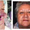 Before and After - Skin Cancer Patient 14 - Front View