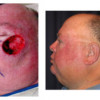 Before and After - Skin Cancer Patient 17 - Side View