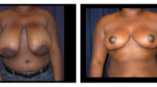 Before and After - Breast Reduction 3 - Front View