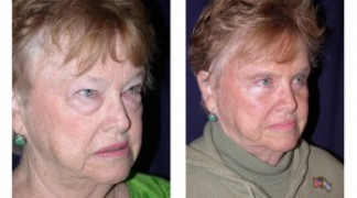 Before and After - Blepharoplasty 1 - Profile