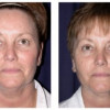 Before and After - Blepharoplasty 2 - Front View
