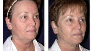 Before and After - Blepharoplasty 2 - Profile