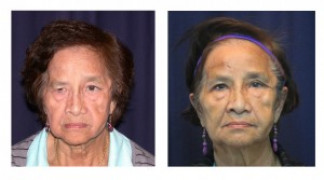 Before and After - Blepharoplasty 5 - Front View