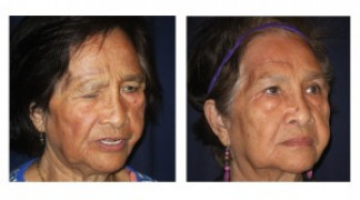 Before and After - Blepharoplasty 5 - Profile