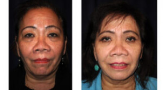 Before and After - Blepharoplasty 8 - Front View