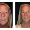 Before and After - Blepharoplasty 9 - Front View