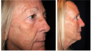 Before and After - Blepharoplasty 9 - Side View