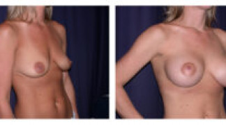 Before and After - Breast Augmentation with Mastopexy 1 - Profile
