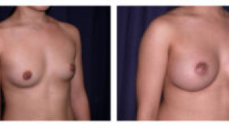 Before and After - Breast Augmentation 11 - Profile