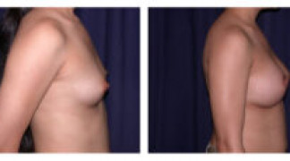 Before and After - Breast Augmentation 11 - Side View