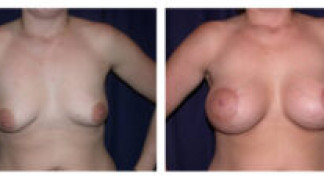 Before and After - Breast Augmentation with Mastopexy 3 - Front View