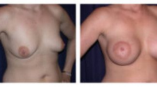 Before and After - Breast Augmentation with Mastopexy 3 - Profile
