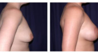 Before and After - Breast Augmentation with Mastopexy 3 - Side View