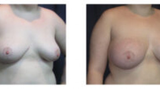 Before and After - Breast Augmentation with Mastopexy 6 - Side View