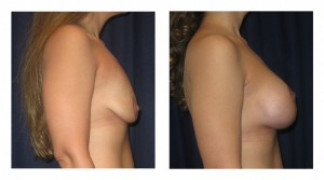 Before and After - Breast Augmentation with Mastopexy 7 - Side View