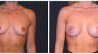 Before and After - Breast Augmentation 1 - Front View