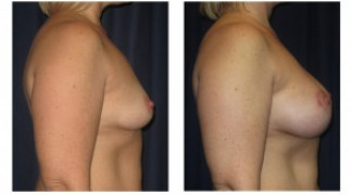 Before and After - Breast Augmentation 12 - Profile