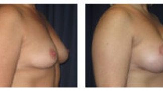 Before and After - Breast Augmentation 12 - Side View