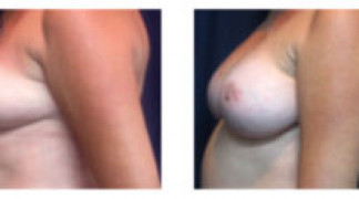 Before and After - Breast Augmentation 14 - Profile