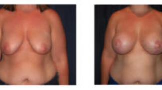 Before and After - Breast Augmentation with Mastopexy 8 - Front View