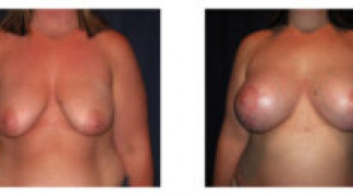 Before and After - Breast Augmentation with Mastopexy 9 - Front View