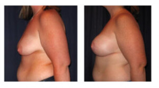 Before and After - Breast Augmentation with Mastopexy 9 - Side View