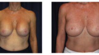 Before and After - Breast Augmentation 16 - Front View