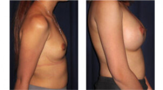 Before and After - Breast Augmentation 17 - Profile