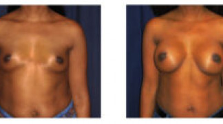 Before and After - Breast Augmentation 18 - Front View
