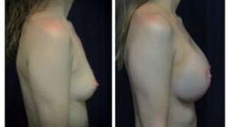 Before and After - Breast Augmentation 19 - Side View