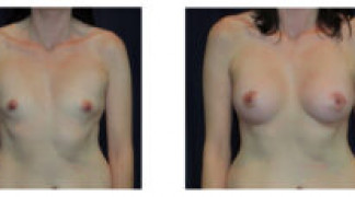 Before and After - Breast Augmentation 20 - Front View