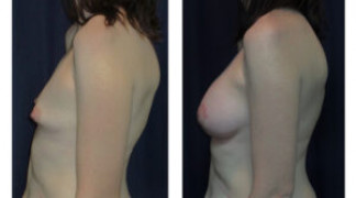 Before and After - Breast Augmentation 20 - Side View