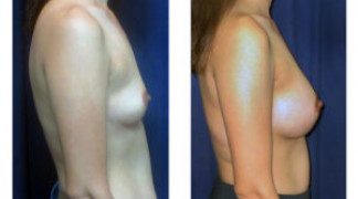 Before and After - Breast Augmentation 21 - Profile