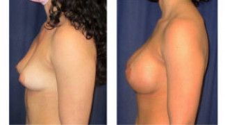 Before and After - Breast Augmentation with Mastopexy 10 - Side View