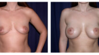 Before and After - Breast Augmentation 2 - Front View