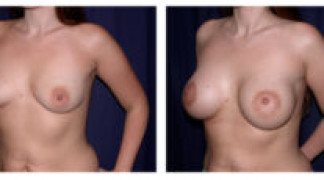 Before and After - Breast Augmentation 2 - Side View