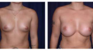 Before and After - Breast Augmentation 3 - Front View