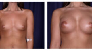 Before and After - Breast Augmentation 4 - Front View