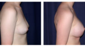 Before and After - Breast Augmentation 5 - Side View