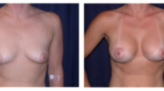 Before and After - Breast Augmentation with Mastopexy 5 - Front View