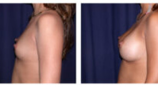 Before and After - Breast Augmentation 6 - Side View