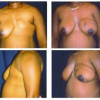 Breast Reconstruction 3 - Complete Reconstruction